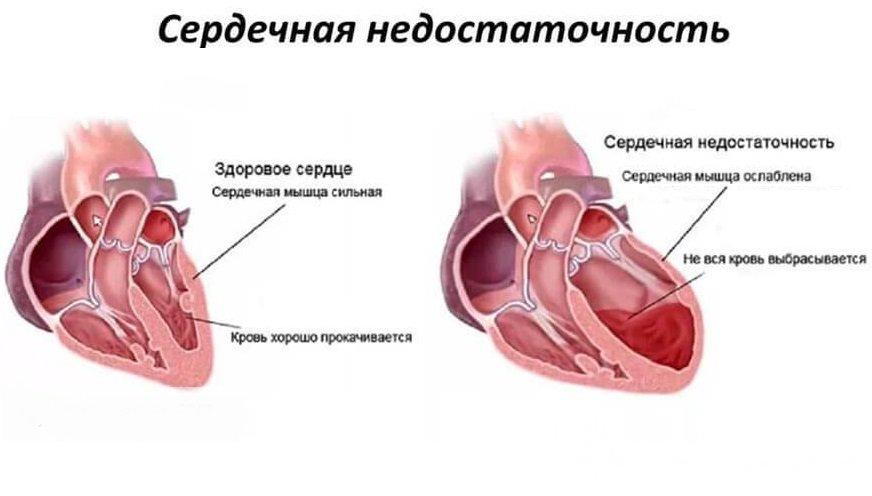 Боли растяжка мышц живота