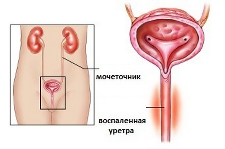 dlinnonogaya-golaya-bryunetka-foto