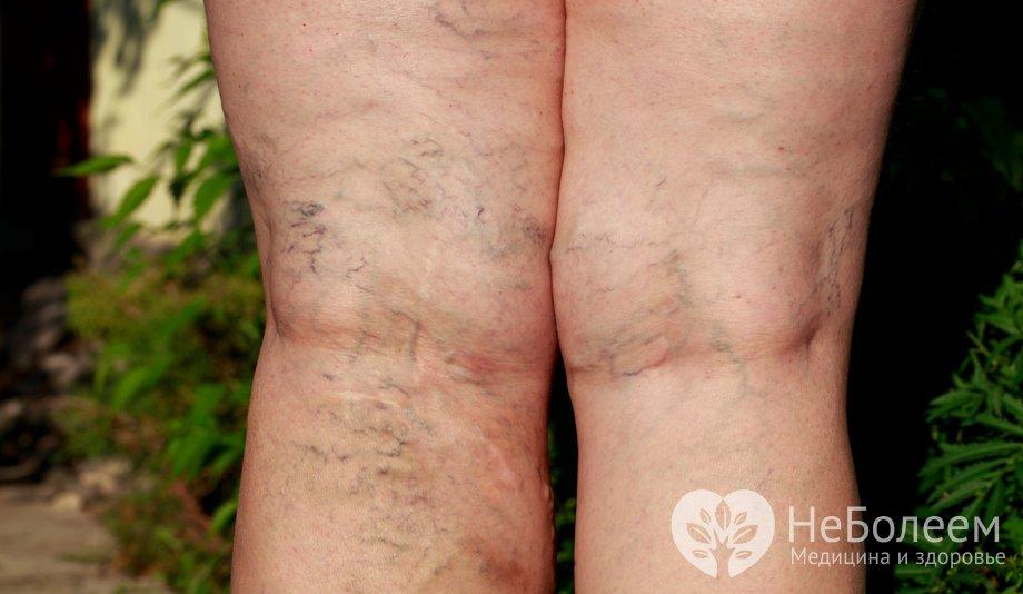 Гольфы на ногу от варикоза как выбрать и носить
