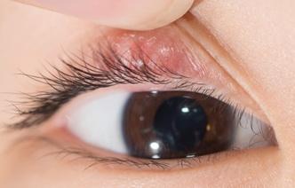 6 свидетельствующих о болезнях изменений глаз