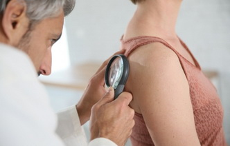 9 мифов о раке кожи: распространенные заблуждения, которым не стоит верить