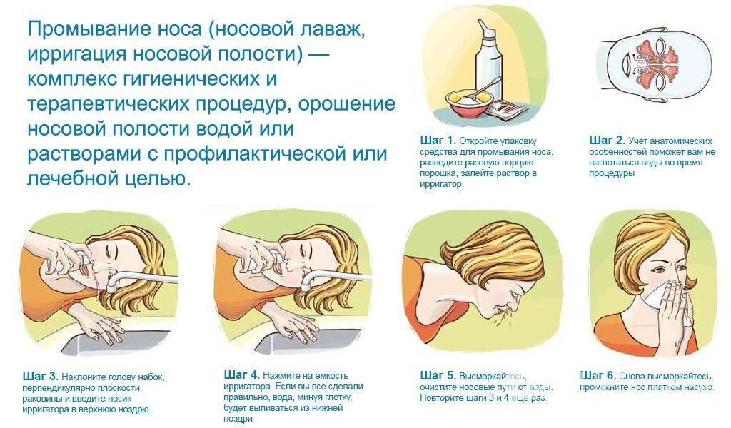 Как сделать воду для промывания носа в домашних 93