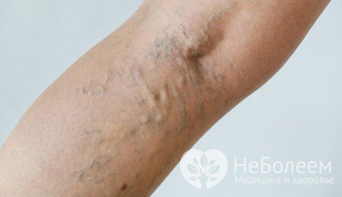 Симптомы тромбоза глубоких вен: выпирание вен