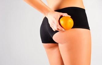 10 мифов о целлюлите