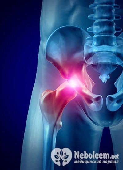 Выпадает тазобедренный сустав что делать витамины и минералы для суставов