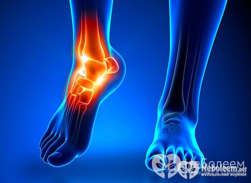 что такое остеоартроз тазобедренного сустава и как его лечить