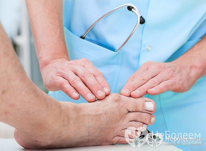 лечение артрита пальцев ног в домашних условиях