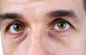Мешки под глазами: 12 причин возникновения проблемы