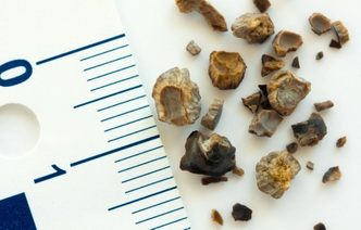 Камни в организме: 4 места, о которых не все знают