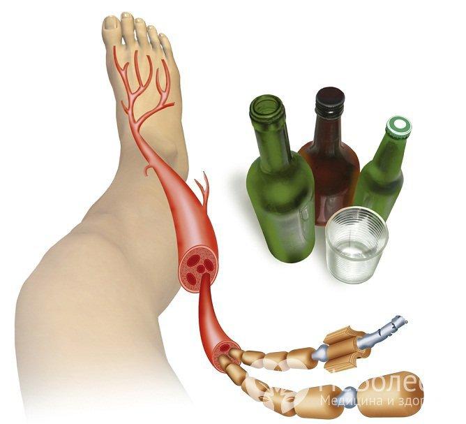 Алкогольная нейропатия характеризуется множественным поражением периферической нервной системы