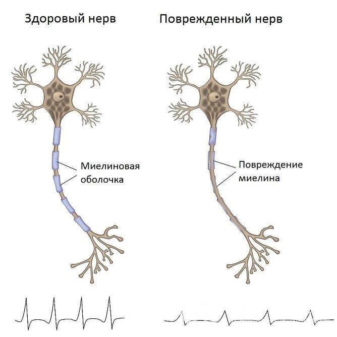 Как выглядит поврежденный нерв при алкогольной полиневропатии
