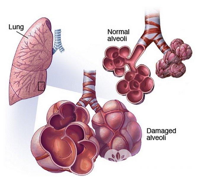 Альвеолит характеризуется воспалением легочных альвеол