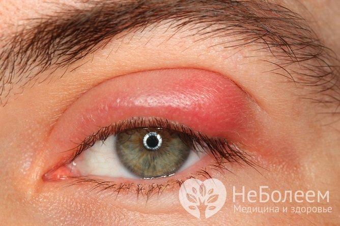 Укусы мошек в области глаз могут вызывать не только отек, но и другие неприятные последствия